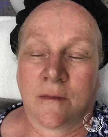 LimeLight: Patient 2 - Before Image