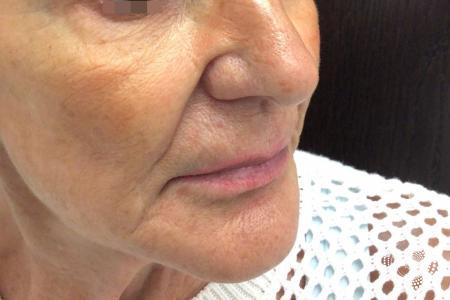 Sculptra Aesthetic: Patient 1 - After Image