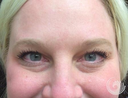 Filler - Tear Trough: Patient 1 - Before Image