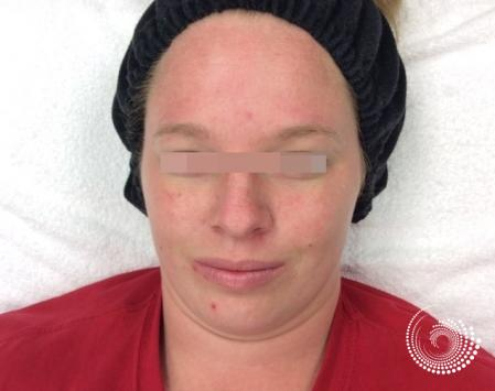 LimeLight: Patient 1 - Before Image