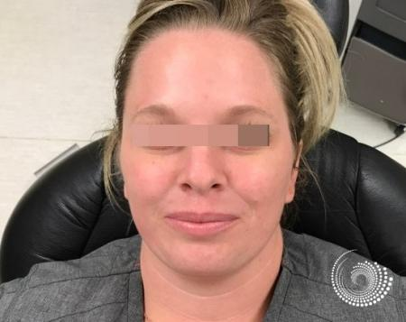 LimeLight: Patient 1 - After Image