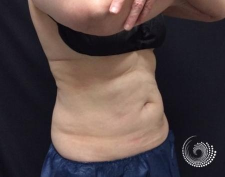 CoolSculpting Elite: Patient 1 - Before and After 5