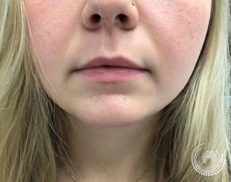 Filler - Lips: Patient 5 - Before 2