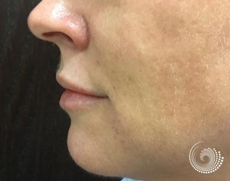 Filler - Lips: Patient 2 - After 3
