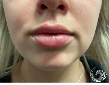 Filler - Lips: Patient 4 - After 1
