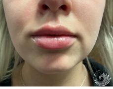 Filler - Lips: Patient 4 - After