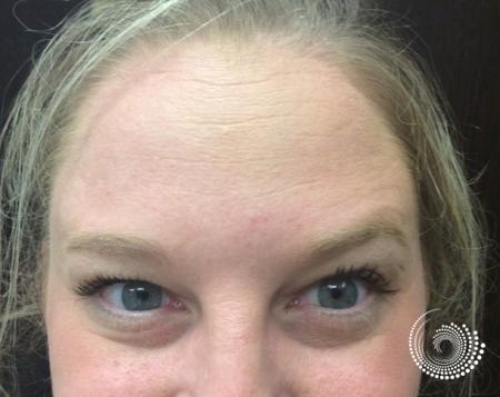 BOTOX® Cosmetic: Patient 1 - After Image