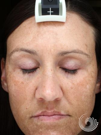 Chemical Peels: Patient 3 - Before Image
