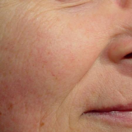 Laser Genesis: Patient 1 - After Image
