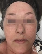 Chemical Peels: Patient 4 - After Image
