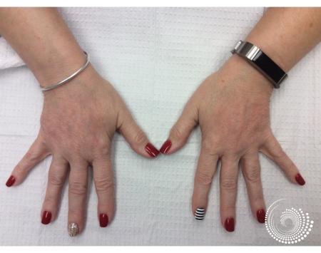 Filler - Hands: Patient 1 - After Image