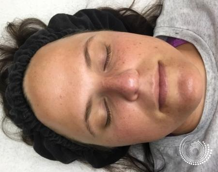 SkinPen Microneedling: Patient 1 - After Image