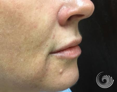 Filler - Lips: Patient 2 - After 2