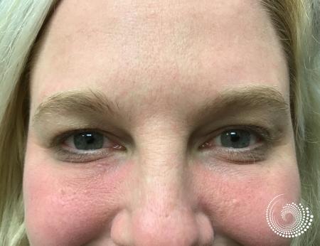 Filler - Tear Trough: Patient 1 - After Image