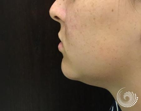 Kybella: Patient 1 - After Image