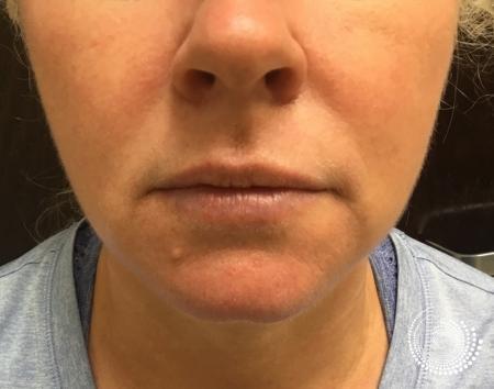 Filler - Lips: Patient 1 - Before Image