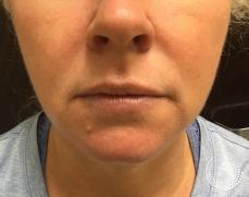 Filler - Lips: Patient 2 - Before