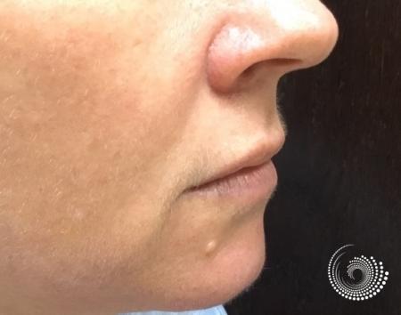 Filler - Lips: Patient 2 - Before 2