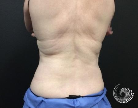 CoolSculpting Elite: Patient 1 - After 4