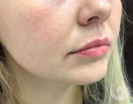 Filler - Lips: Patient 5 - After 3