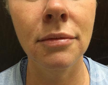 Filler - Lips: Patient 1 - After Image
