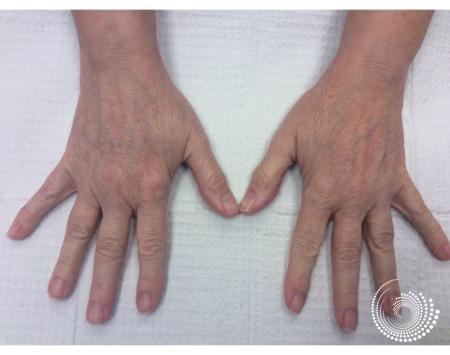 Filler - Hands: Patient 1 - Before Image