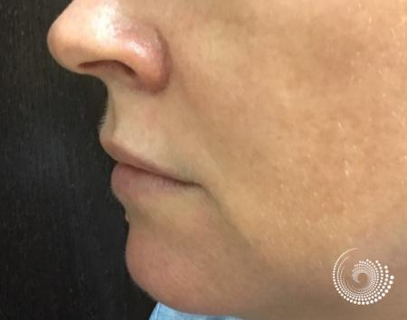 Filler - Lips: Patient 2 - Before and After 3