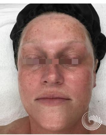 Chemical Peels: Patient 2 - Before Image