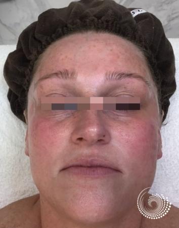 Chemical Peels: Patient 2 - After Image