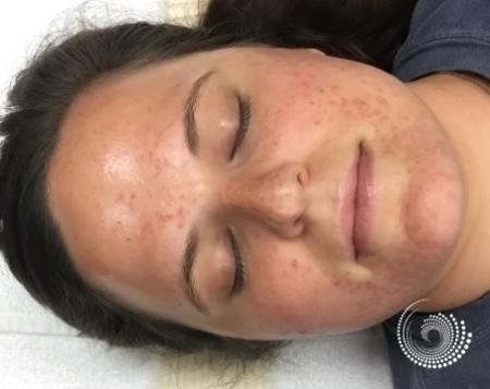 SkinPen Microneedling: Patient 1 - Before Image