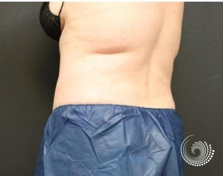 CoolSculpting Elite: Patient 5 - Before and After 4
