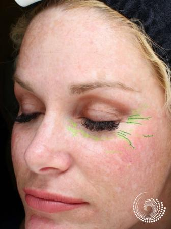 Chemical Peels: Patient 1 - Before Image