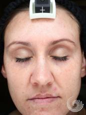 Chemical Peels: Patient 3 - After