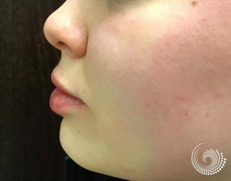Filler - Lips: Patient 4 - After 3