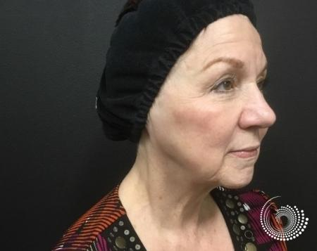 Ultherapy: Patient 1 - After Image