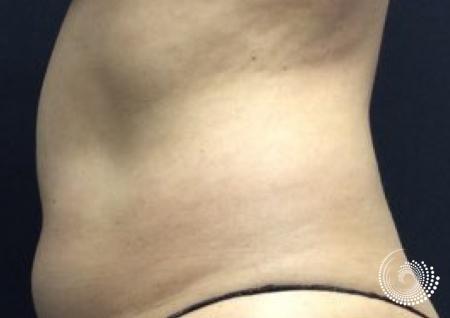 CoolSculpting Elite: Patient 6 - Before and After 2