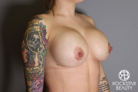 Breast Implant Exchange: Patient 10 - After Image 2