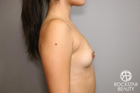 Breast Augmentation: Patient 4 - Before Image 3