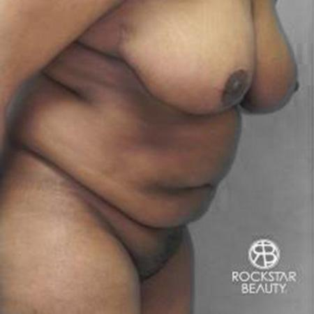 Tummy Tuck: Patient 9 - Before and After Image 3