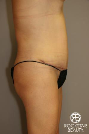 Tummy Tuck: Patient 1 - After Image 3