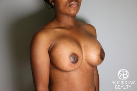 Breast Augmentation: Patient 10 - After Image 2