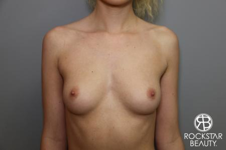 Breast Augmentation: Patient 1 - Before Image