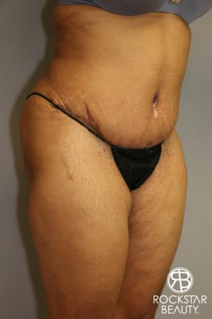 Tummy Tuck: Patient 3 - After Image 2