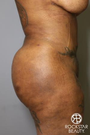 Brazilian Butt Lift: Patient 15 - After Image 5