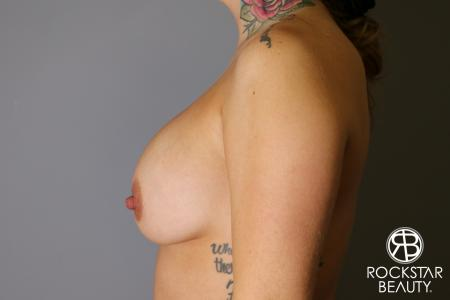 Breast Implant Exchange: Patient 10 - Before and After Image 5