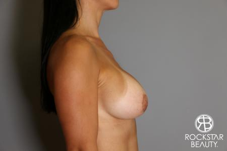 Breast Augmentation: Patient 12 - After Image 4