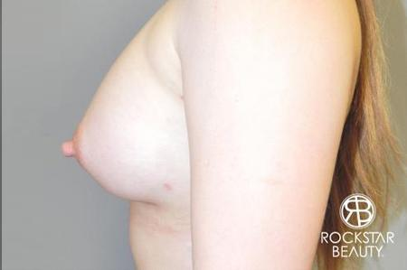 Breast Augmentation: Patient 6 - After Image 5