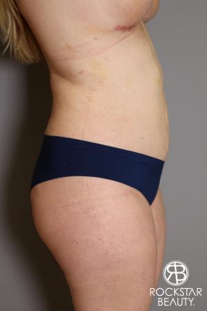 Liposuction: Patient 11 - After Image 3