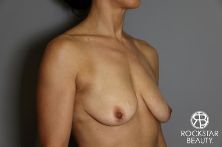 Breast Augmentation: Patient 12 - Before Image 2