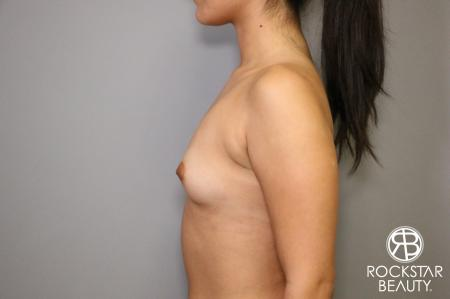 Breast Augmentation: Patient 4 - Before and After Image 5